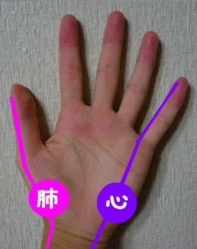 手のひらが赤い