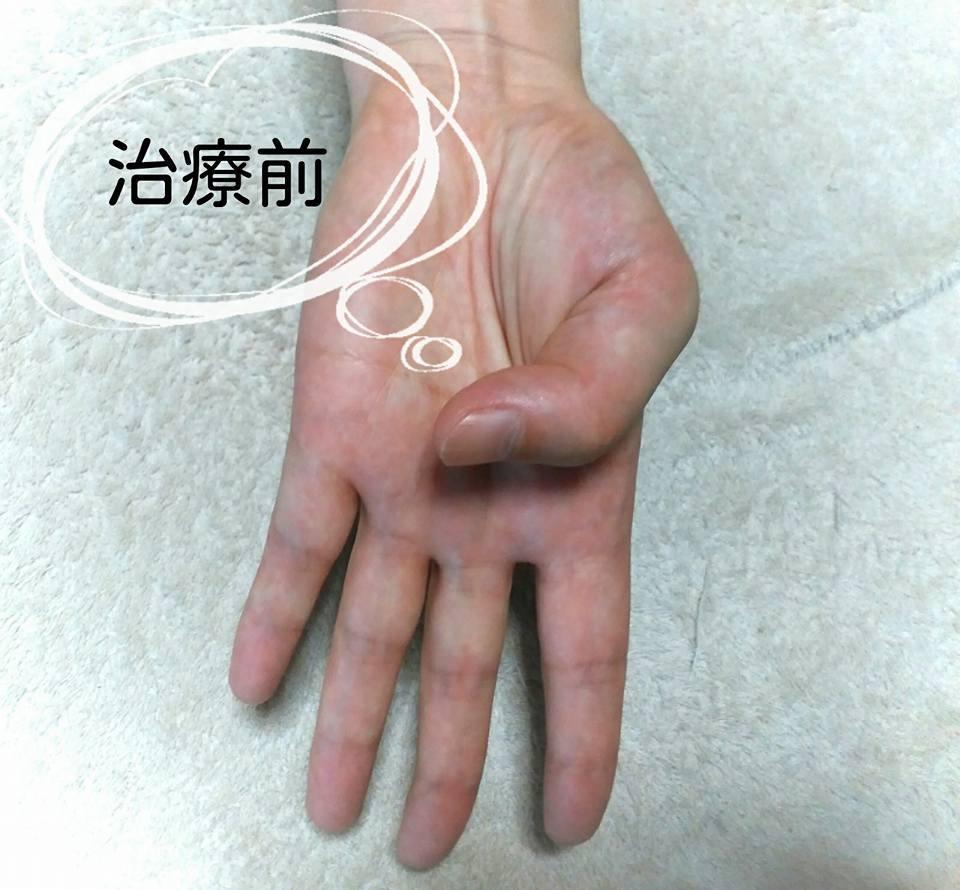 手の症状治療前