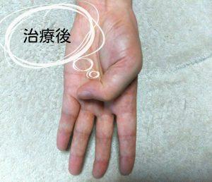 手の症状治療後