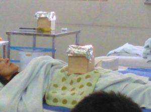 お灸体験箱灸箱灸というお灸をしているところ
